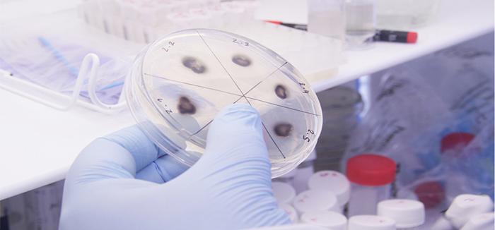 bacteria jpg